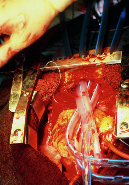 Surgery Photograph - Heart Surgery by Antonia Reeve/science Photo Library