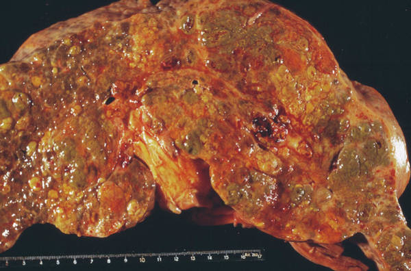 Neoplasm Photograph - Liver Cancer by Cnri/science Photo Library