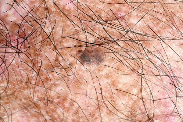48 Wall Art - Photograph - Mole by Dr P. Marazzi/science Photo Library