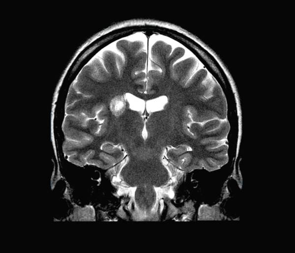 Short Cut Photograph - Multiple Sclerosis by Zephyr/science Photo Library