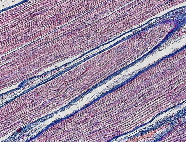 Axon Wall Art - Photograph - Nerve Fibres by Alfred Pasieka/science Photo Library