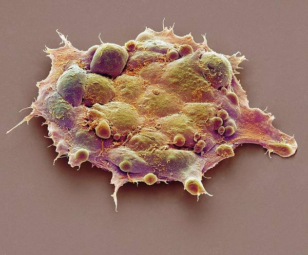 Controversial Photograph - Pluripotent Stem Cells by Steve Gschmeissner
