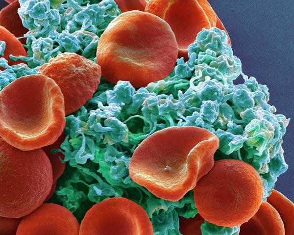 Biological Wall Art - Photograph - Red Blood Cells And Platelets by Steve Gschmeissner