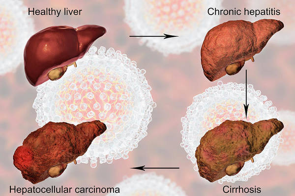 Wall Art - Photograph - Stages Of Liver Disease In Hepatitis C by Kateryna Kon/science Photo Library