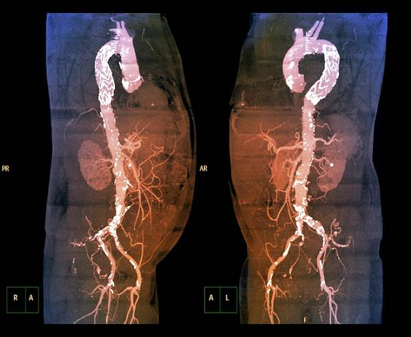 Atherosclerosis Wall Art - Photograph - Stent In Aortic Aneurysm by Zephyr/science Photo Library