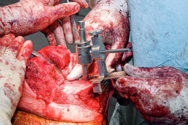 Lp Wall Art - Photograph - Total Knee Replacement Surgery by Dr P. Marazzi/science Photo Library