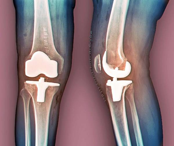 Radiological Photograph - Total Knee Replacement by Zephyr/science Photo Library
