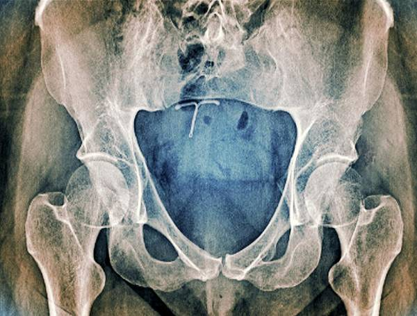 Wall Art - Photograph - Underdeveloped Pelvic Bones by Zephyr/science Photo Library