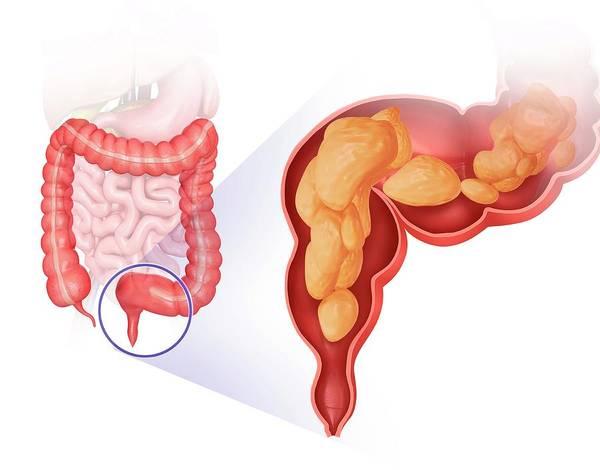 Biological Illustration Wall Art - Photograph - Large Intestine by Pixologicstudio