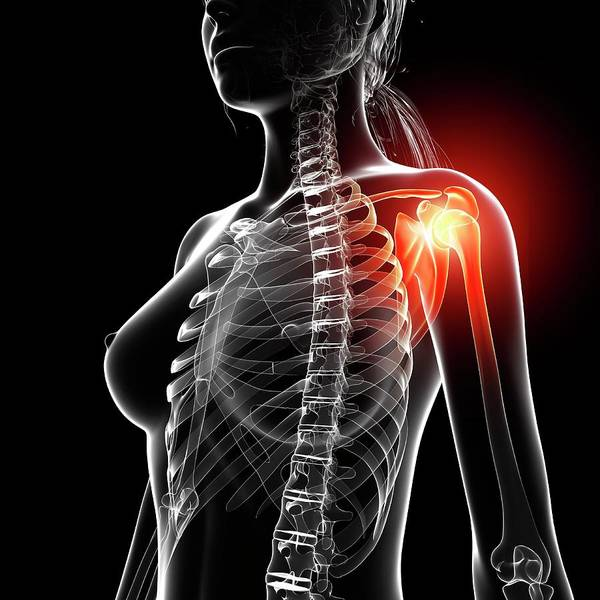 Wall Art - Photograph - Shoulder Pain by Pixologicstudio/science Photo Library