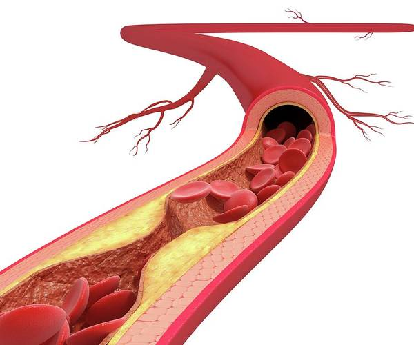 Wall Art - Photograph - Atherosclerosis by Pixologicstudio/science Photo Library