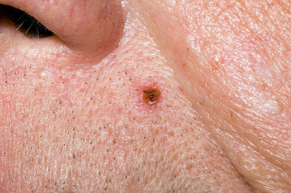 Dark Skin Photograph - Basal Cell Carcinoma by Dr P. Marazzi/science Photo Library