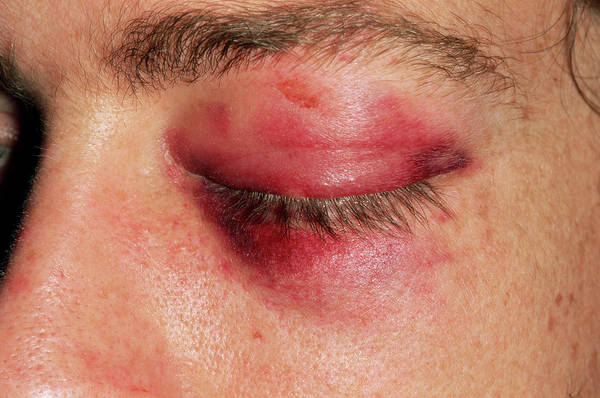 Wall Art - Photograph - Black Eye by Dr P. Marazzi/science Photo Library