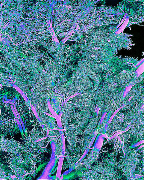 Scanning Electron Micrograph Wall Art - Photograph - Blood Vessels by Susumu Nishinaga