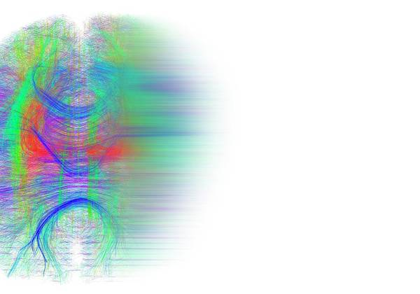 Wall Art - Photograph - Brain White Matter Fibres Dissolving by Alfred Pasieka/science Photo Library
