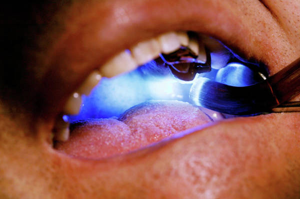 Filling Photograph - Dental Treatment by Mauro Fermariello/science Photo Library