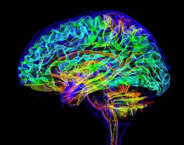 Wall Art - Photograph - Human Brain by K H Fung/science Photo Library