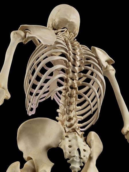 Lumbar Vertebra Photograph - Human Spine by Sciepro