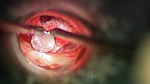 Anvil Photograph - Middle Ear Surgery by Dr P. Marazzi/science Photo Library