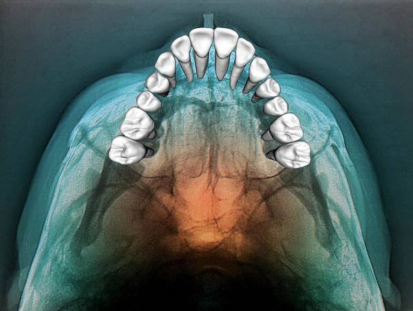 False Color Wall Art - Photograph - Normal Teeth by Zephyr