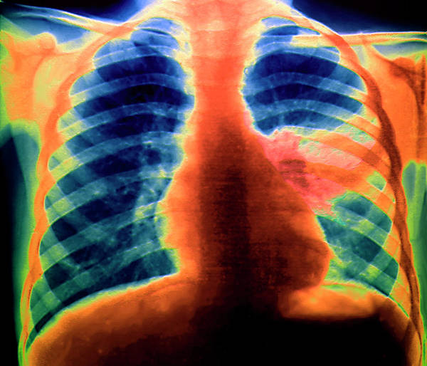 Wall Art - Photograph - Pneumonia by Zephyr/science Photo Library