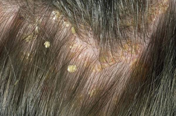Scaling Photograph - Psoriasis On The Scalp by Dr P. Marazzi/science Photo Library