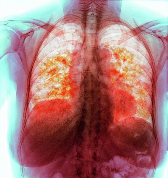 Wall Art - Photograph - Pulmonary Fibrosis by Dr P. Marazzi/science Photo Library