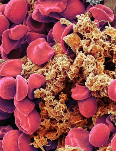 Rbcs Wall Art - Photograph - Red Blood Cells And Platelets by Steve Gschmeissner