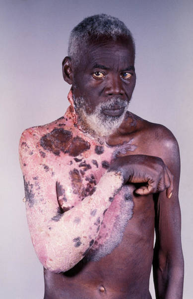 Wall Art - Photograph - Skin Cancer by Dr M.a. Ansary/science Photo Library