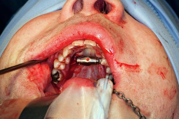 Sleep Disorder Photograph - Sleep Apnoea Surgery by Dr P. Marazzi/science Photo Library