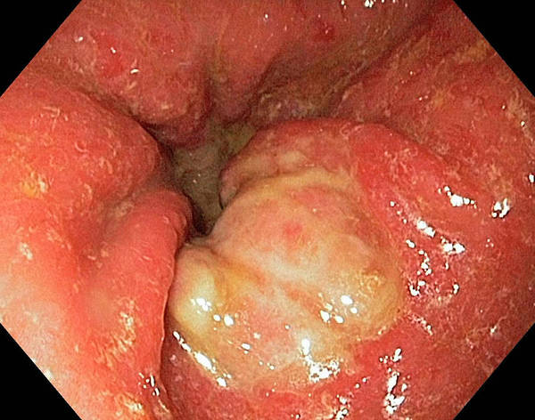 Neoplasm Photograph - Stomach Cancer by Gastrolab