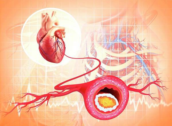 Atherosclerosis Art Print by Pixologicstudio/science Photo Library