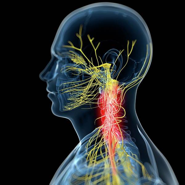 Wall Art - Photograph - Neck Pain by Sciepro/science Photo Library