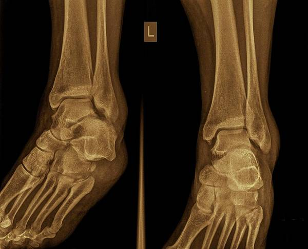 Body Parts Photograph - Ankle X-ray by Photostock-israel
