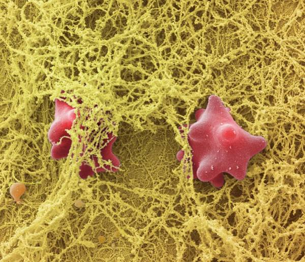 Fibrin Wall Art - Photograph - Blood Clot by Science Photo Library