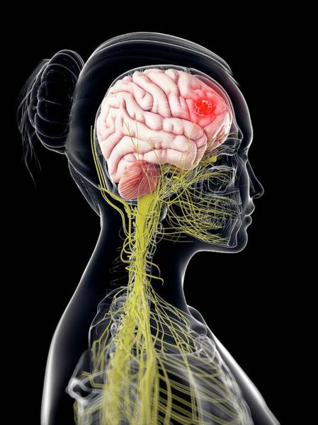Wall Art - Photograph - Brain Cancer by Sciepro/science Photo Library