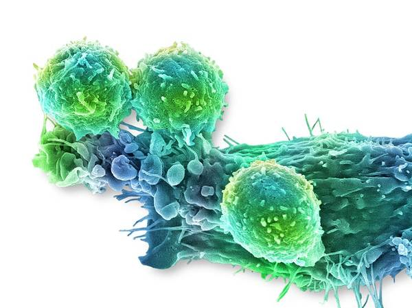 Wall Art - Photograph - Cancer Cell And T Lymphocytes by Steve Gschmeissner