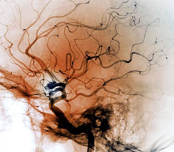 Wall Art - Photograph - Cerebral Aneurysm by Zephyr/science Photo Library