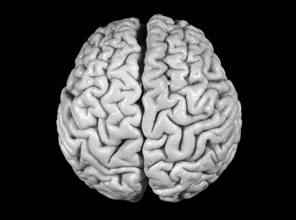 Neurology Photograph - Einstein's Brain by Otis Historical Archives, National Museum Of Health And Medicine