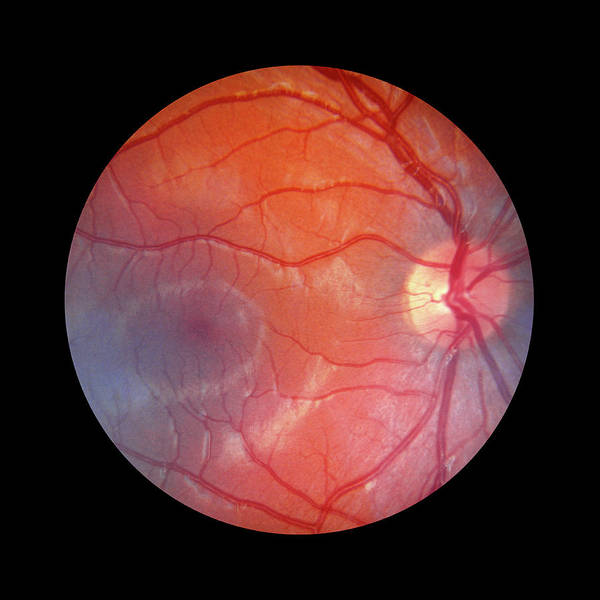 Wall Art - Photograph - Fundus Camera Image Of A Normal Retina by Rory Mcclenaghan/science Photo Library
