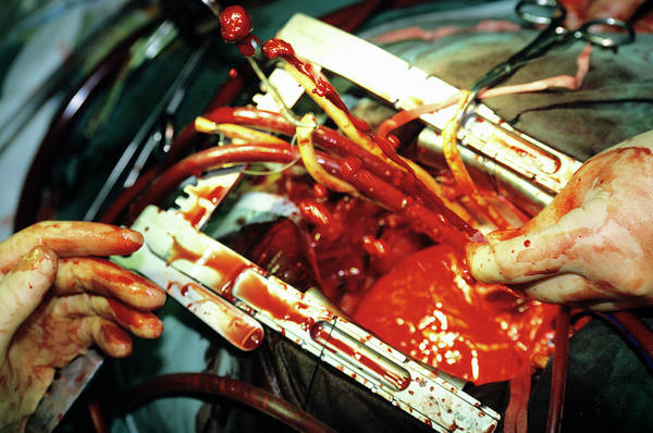 Pipe Organ Wall Art - Photograph - Heart Bypass Surgery by Antonia Reeve/science Photo Library