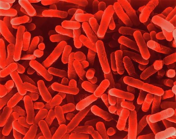 Wall Art - Photograph - Legionella Pneumophila by Dennis Kunkel Microscopy/science Photo Library