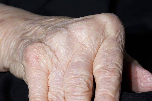 Wall Art - Photograph - Rheumatoid Arthritis by Dr P. Marazzi/science Photo Library