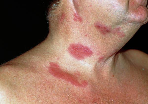 Shingles Photograph - Shingles Rash by Dr P. Marazzi/science Photo Library