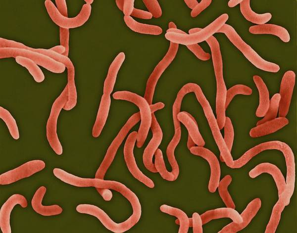 Tif Wall Art - Photograph - Vibrio Cholerae by Dennis Kunkel Microscopy/science Photo Library