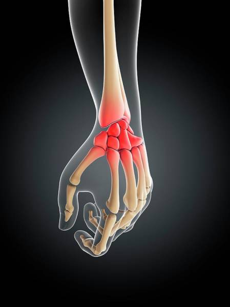 Wall Art - Photograph - Wrist Pain by Sciepro/science Photo Library