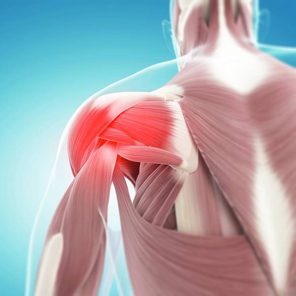 Wall Art - Photograph - Shoulder Pain by Sciepro/science Photo Library
