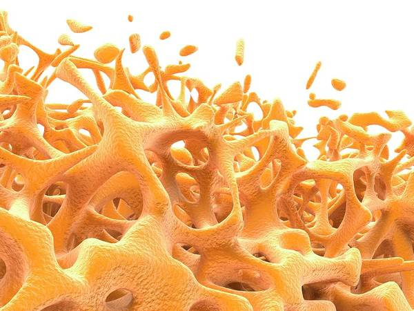 Bone Structure Wall Art - Photograph - Bone Tissue by Alfred Pasieka/science Photo Library