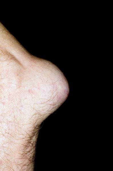 65 Photograph - Bursitis Of The Elbow by Dr P. Marazzi/science Photo Library