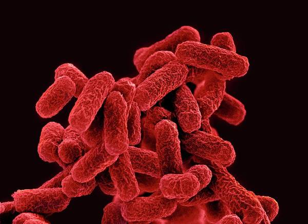 Wall Art - Photograph - E. Coli Bacteria by Steve Gschmeissner/science Photo Library